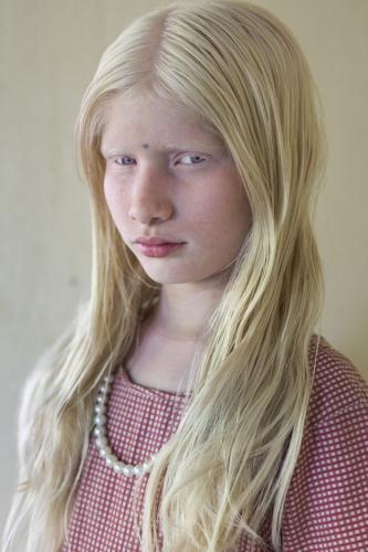 Niña albina